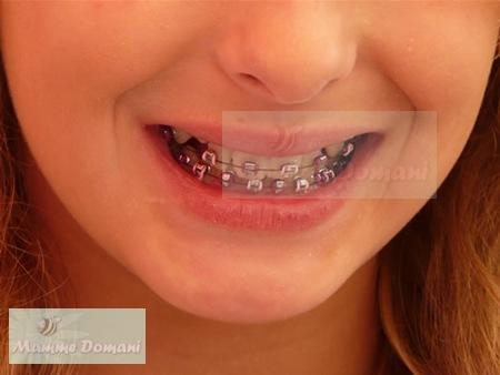 Mamme Domani | Bambini rischiano l'anoressia con gli apparecchi dentali